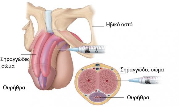 ένεση στο πέος