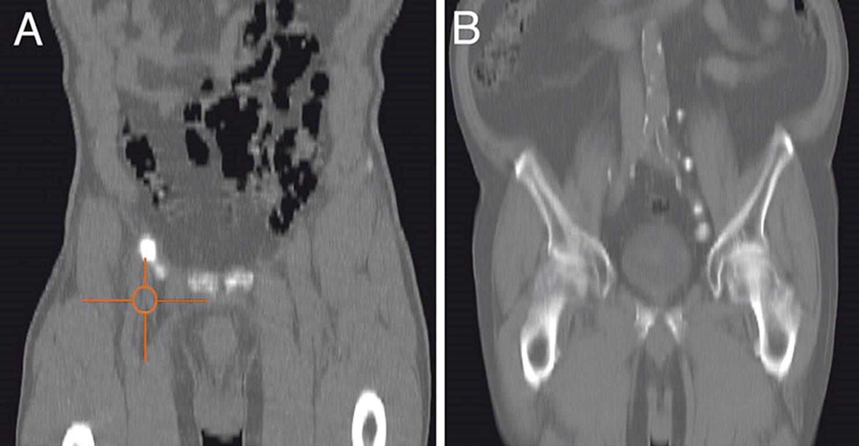 βουβωνική λεμφαδένες σε καρκίνο πέους