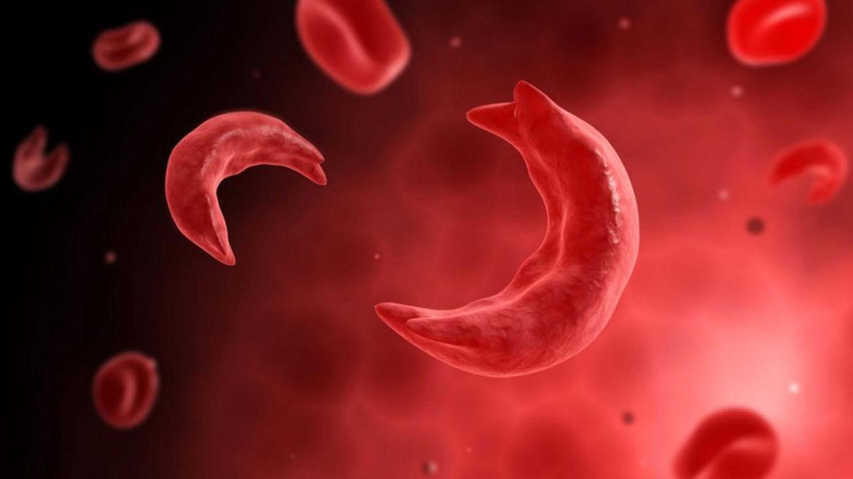 δρεπανοκυτταρική