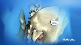 νευροδιεγερση